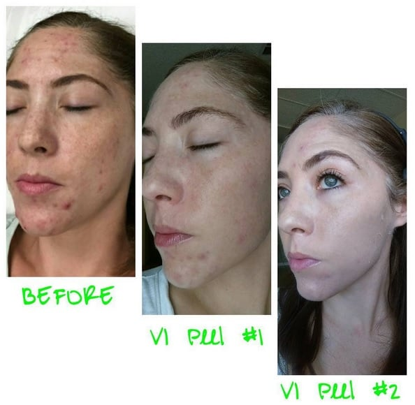 vi peel precision plus instructions